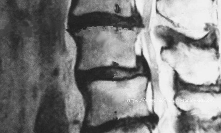 椎間板ヘルニア CBD